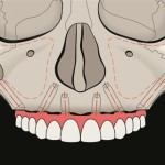 zygomatic_implants