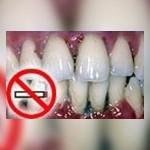 الاقلاع-عن-التدخين