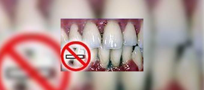 الإقلاع عن التدخين يساعد في الشفاء من أمراض اللثة