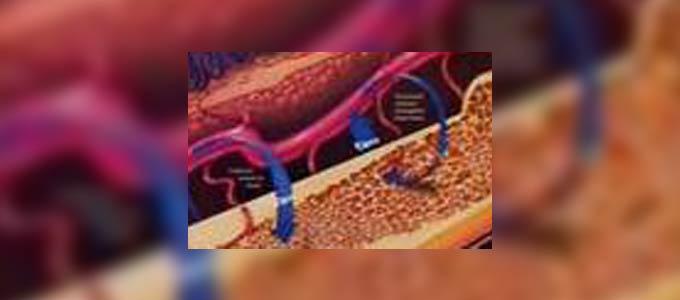 زرع الأسنان لدى مرضى السكري ومرضى الترقق العظمي