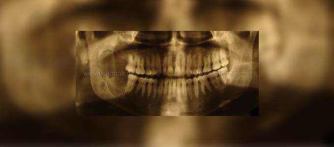السرطان الغدي المركزي – عرض حالة في الفك السفلي (ملخص)