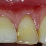 Endodontic-correlation-periodontal