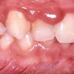 Gingivitis-in-children
