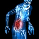 Musculoskeletal-disorders