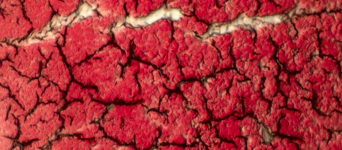 استخدام خثرة البلازما الغنية بالصفائح الدموية في العلاج الجراحي للأكياس الجذرية السنية