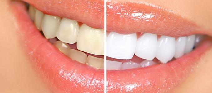لماذا يكون تبييض الأسنان مؤلماً
